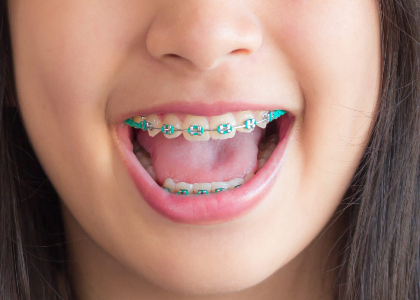 Prep your child for getting braces: what to say and do as a parent