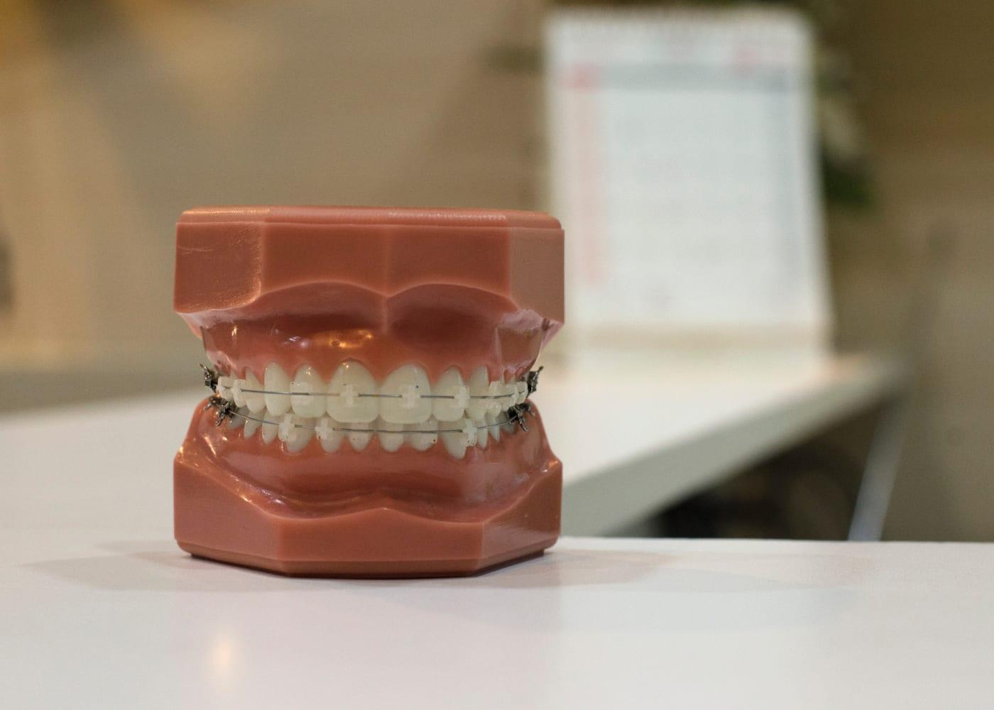 kids braces dental model